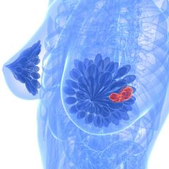 Fine-tuning treatment for triple-negative breast cancer